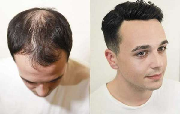 Where To Buy hair replacement systems